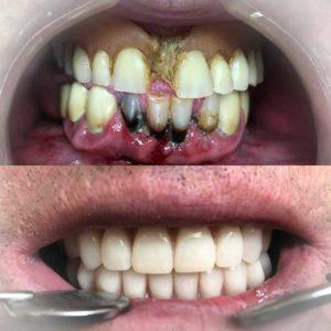 dental oral centar pre i posle ugradnje implantata