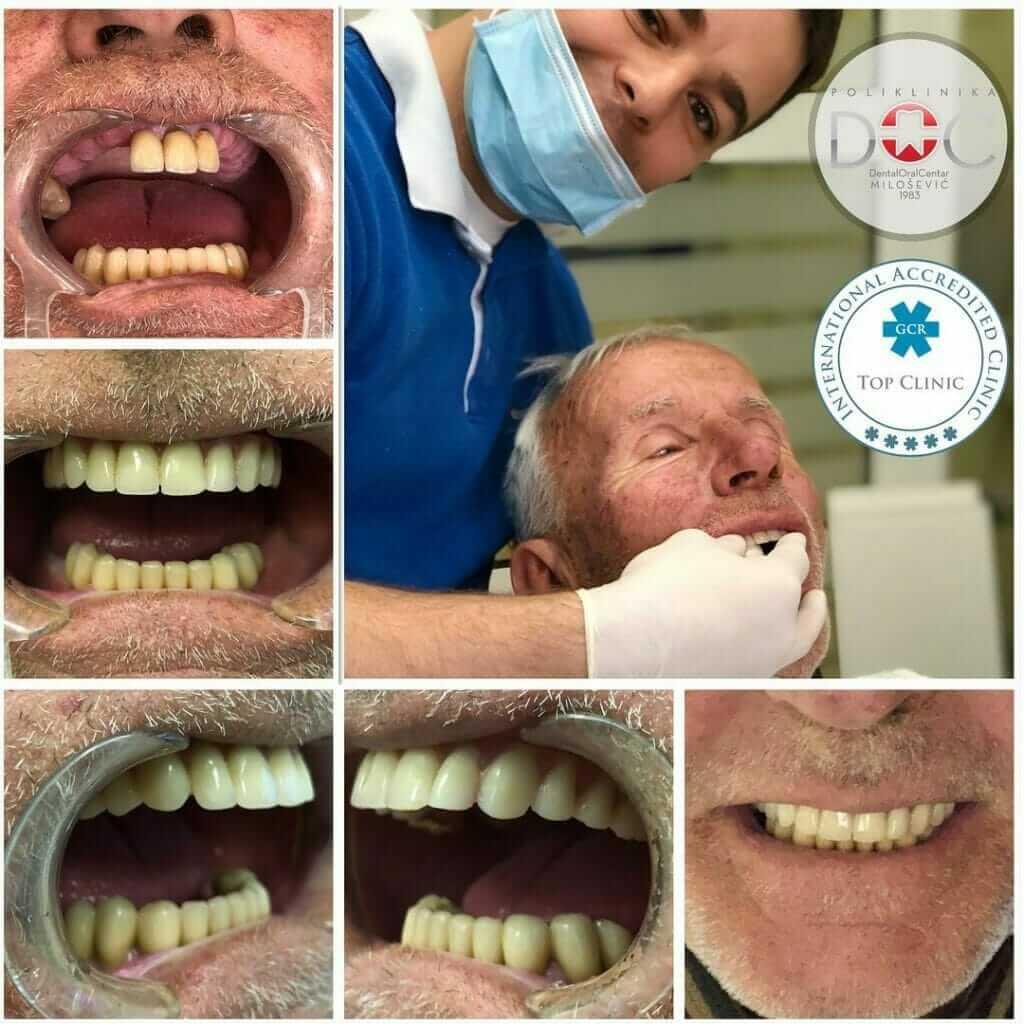 pacijent pre i posle ugradnje zubnih implanata
