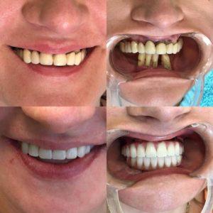 iskustva pacijenata pre i posle ugradnje zubnih implantata
