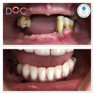 vilica pacijenta pre i posle zubnih implantata
