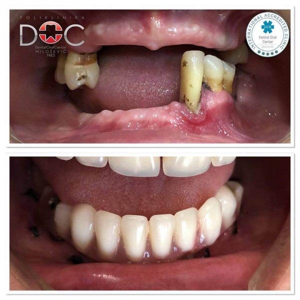 pre i posle postavljanja zubnih implantata