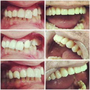 izgled vilice pre i posle ugradnje zubnih implantata