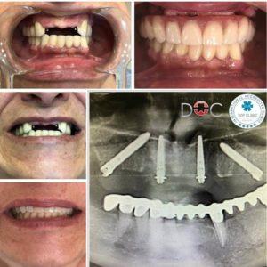 dental oral centar pre i posle ugradnje zubnih implantata