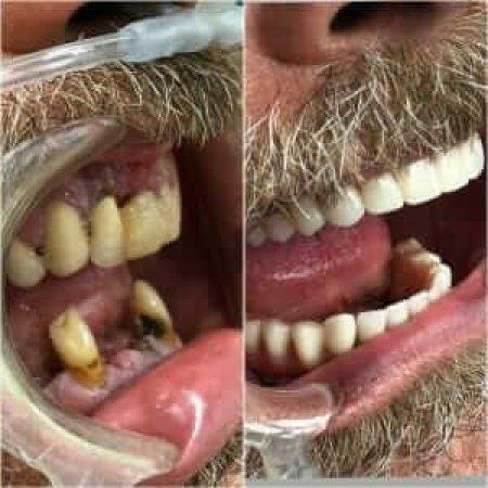 pacijent pre i posle ugradnje implanata