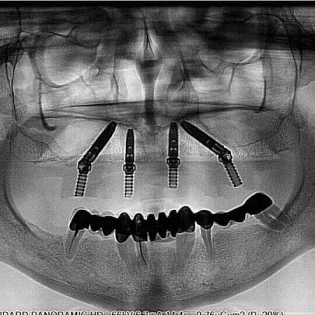 rendgenski snimak vilice sa implantima