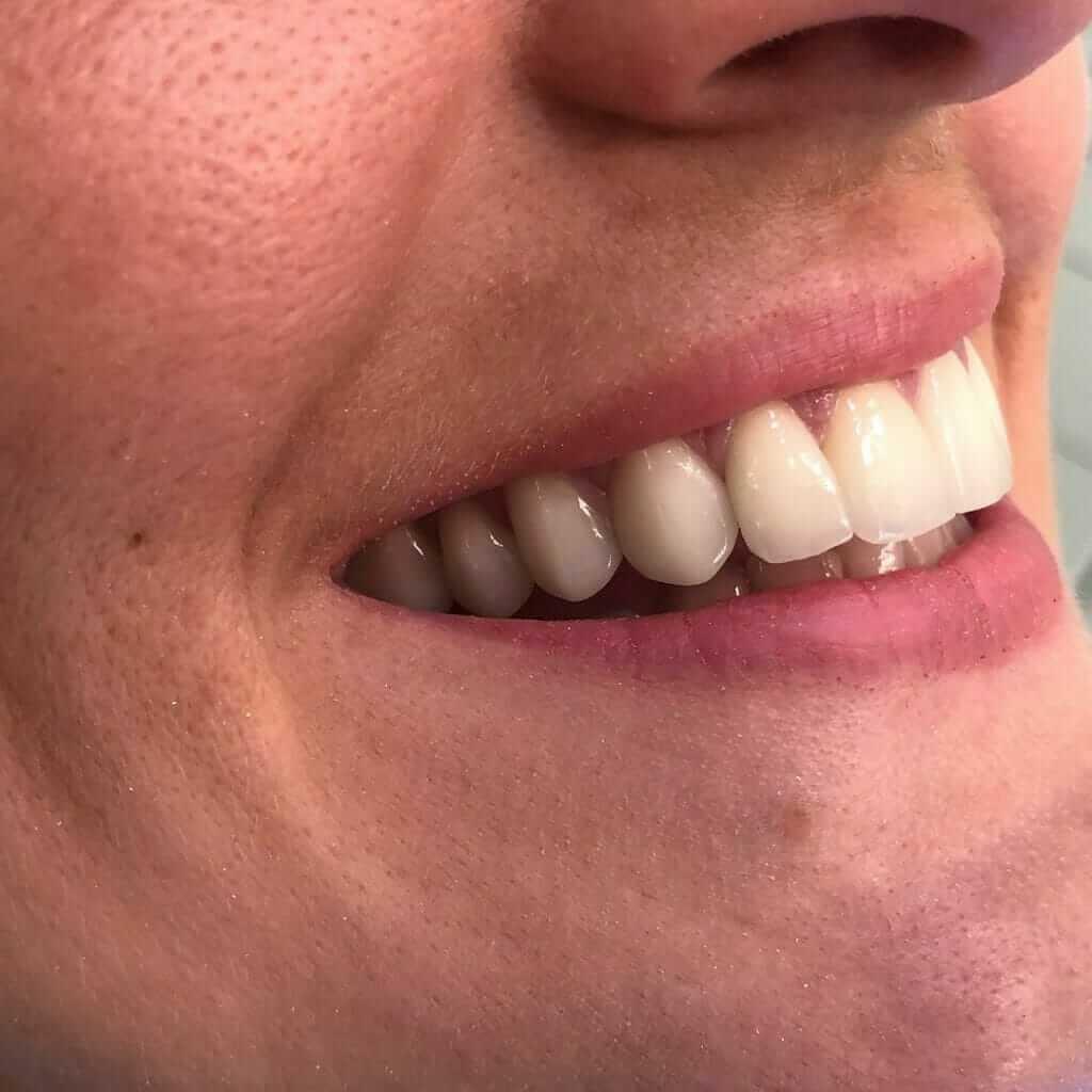 osmeh zadovoljnog pacijenta nakon postavljanja bezmetalnih krunica