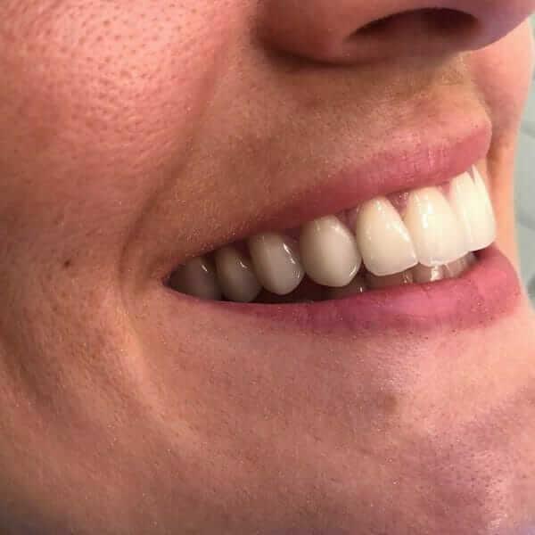 vilica sa ugrađenim zubnim fasetama