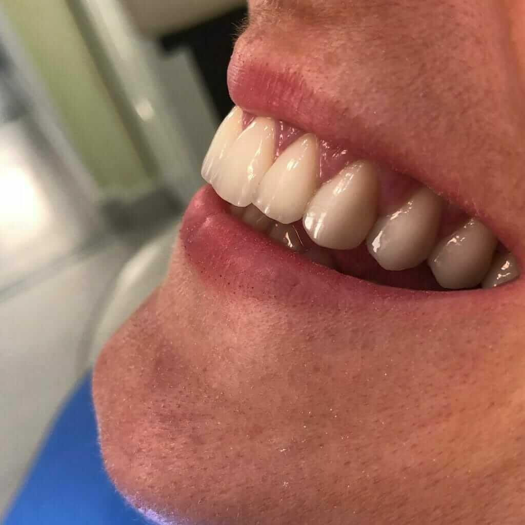 osmeh pacijenta nakon postavljanja bezmetalnih krunica