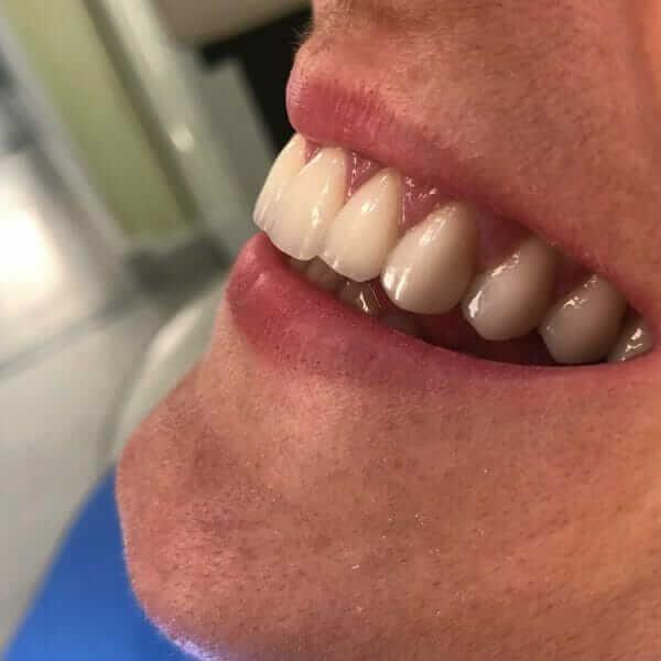 izgled vilice nakon postavljanja zubih faseta