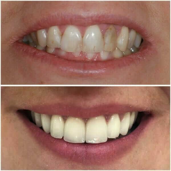 iskusva pre i posle ugradnje zubnih faseta