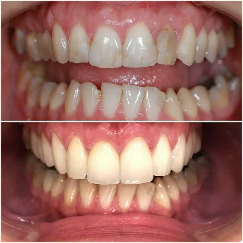 pacijent nakon postavljanja bezmetalnih krunica u Dental Oral Centru Beograd