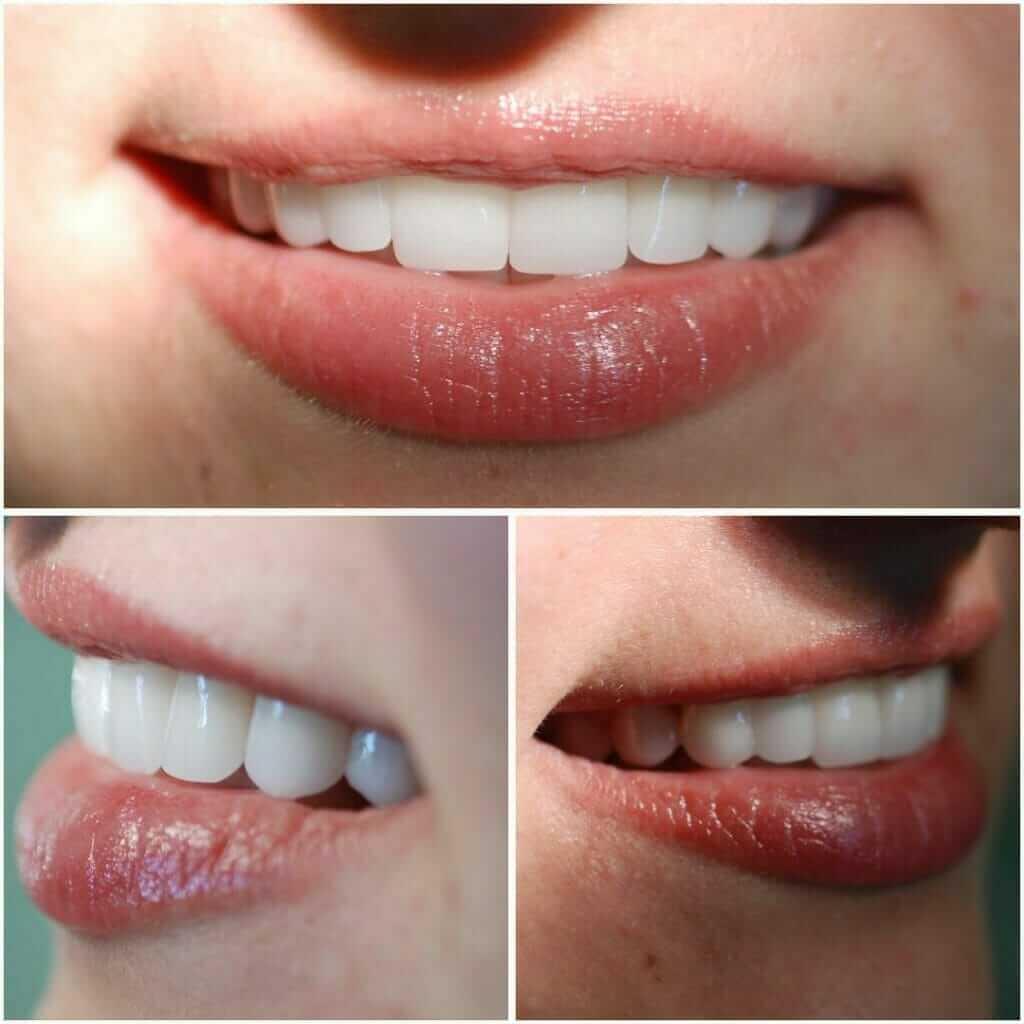 osmeh nakon postavljanja bezmetalnih krunica Dental Oral Centar Beograd