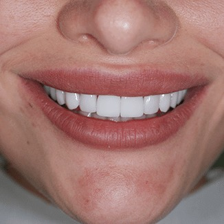 pacijent sa zubnim fasetama