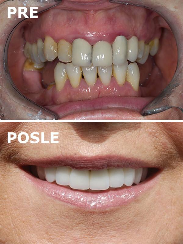 osmeh pacijenta pre i posle postavljanja zubnih implantata