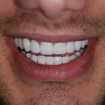 Sta znace bele fleke na zubima