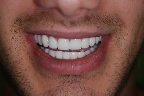 Сода бикарбона за зубе искуства