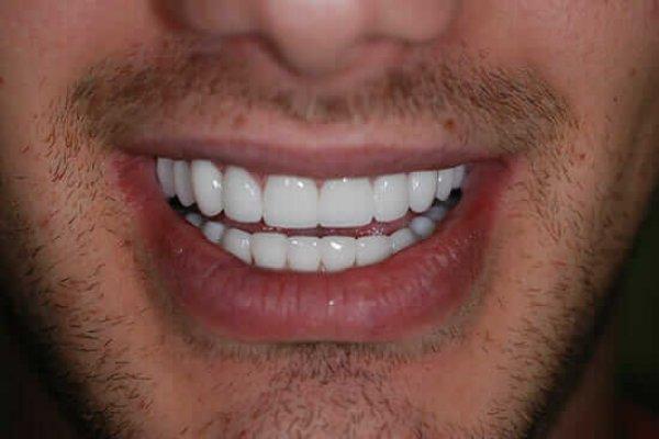 Estetska stomatologija u poliklinici Dental Oral Centar Beograd