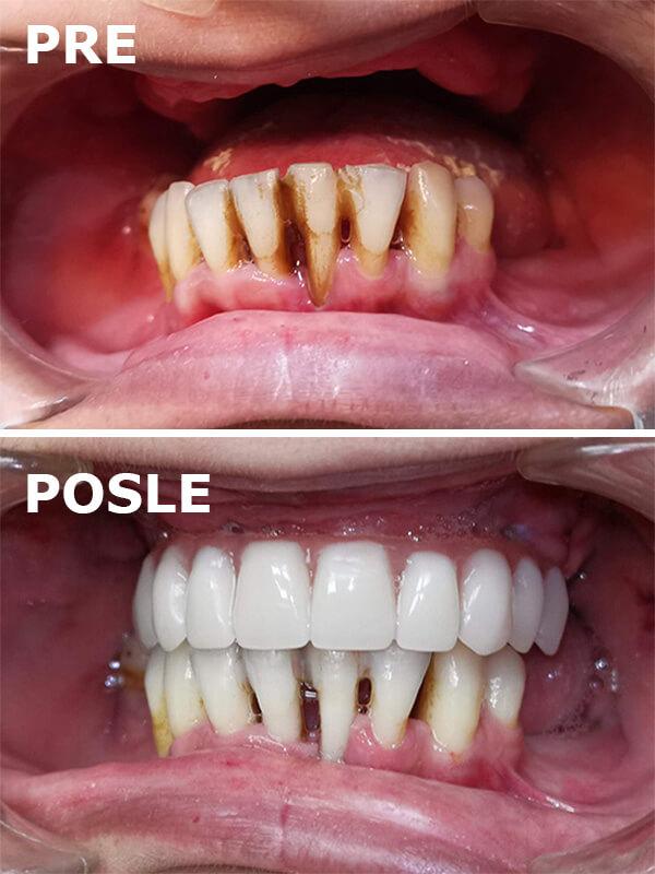 pre i posle postavljanja zubnih implantata Dental Oral Centar Beograd