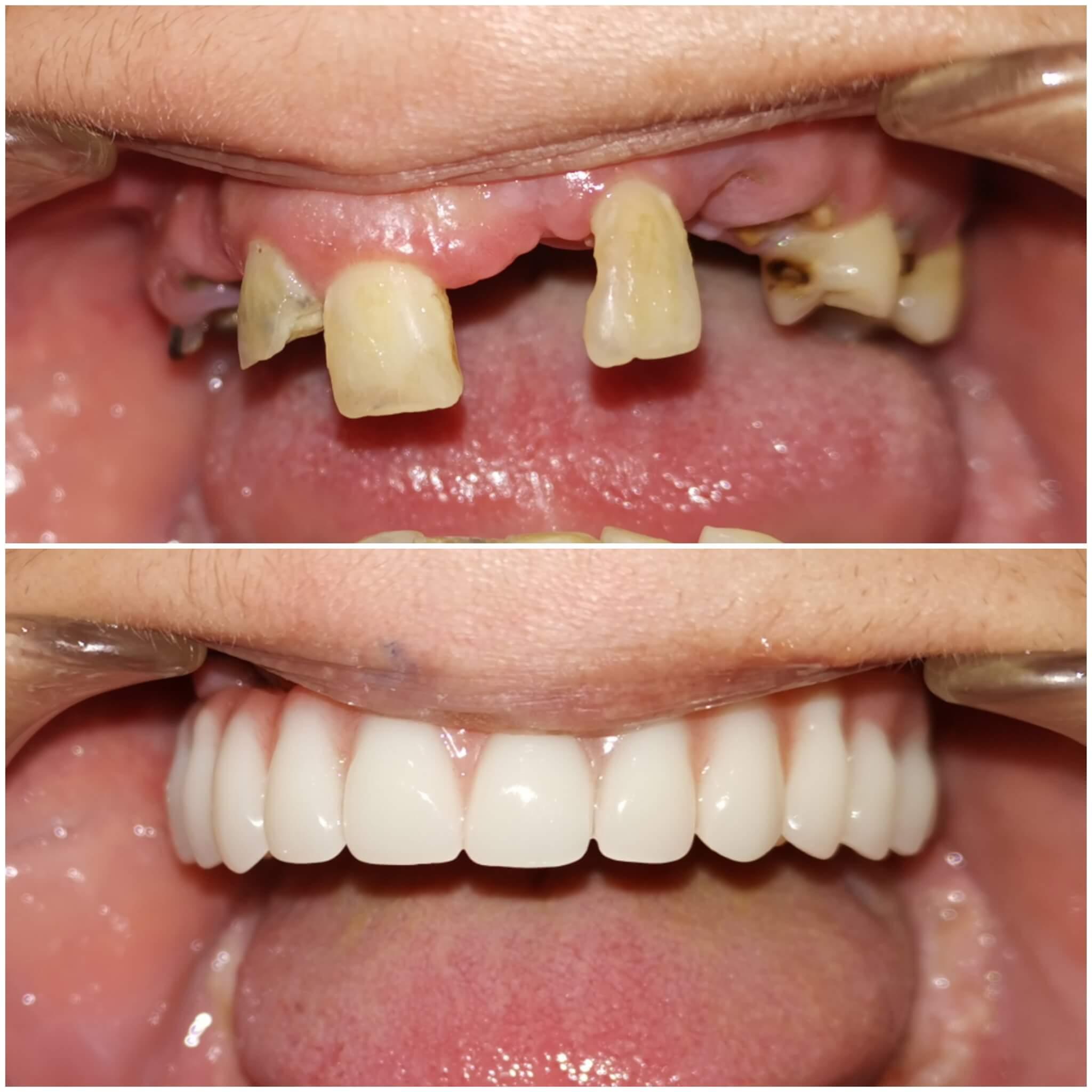 all on 4 gornja vilica pre i posle dental oral centar
