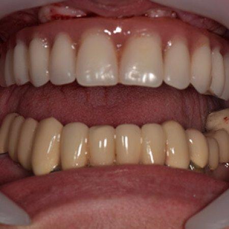 pacijent sa ugrađenim all on 4 implantima
