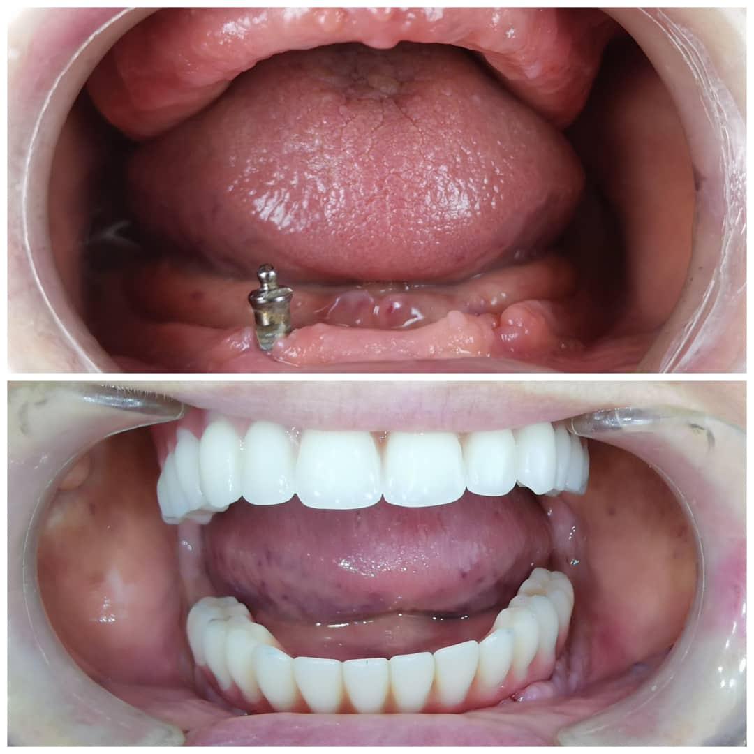 all on 4 obe vilice pre i posle dental oral centar