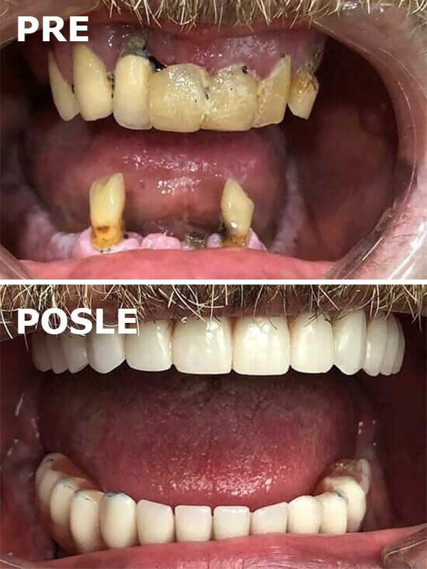 all on 4 pre i posle dental oral centar