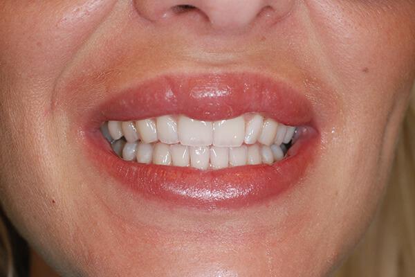 Estetska stomatologija Dental Oral Centar Beograd