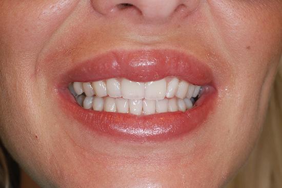 izgled zuba nakon izbeljivanja Dental Oral Centar Beograd
