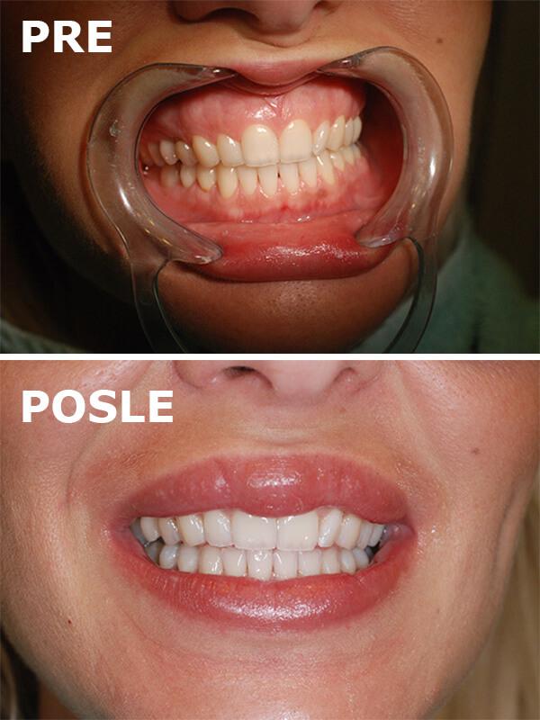beljenje zuba pre i posle dental oral centar