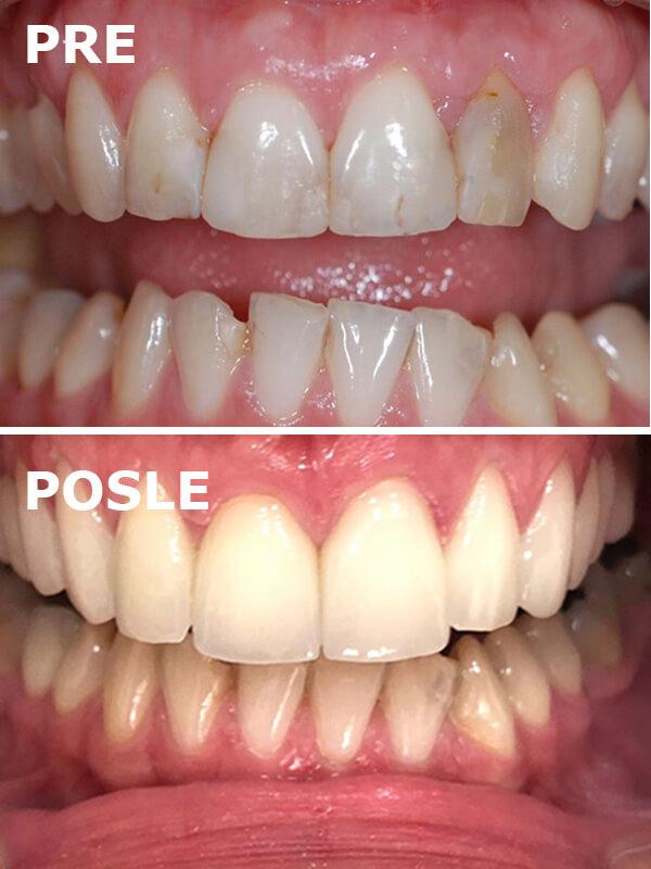 bezmetalne krunice pre i posle dental oral centar