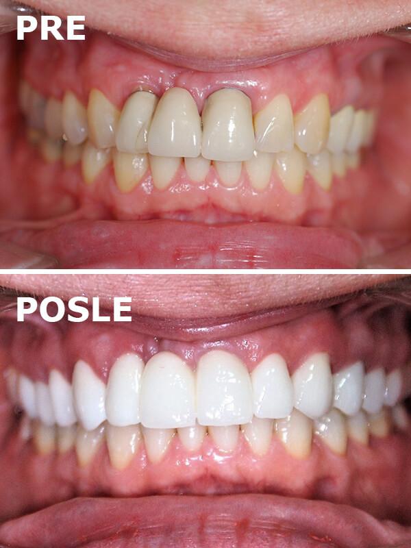 bezmetalne krunice i fasete pre i posle dental oral centar