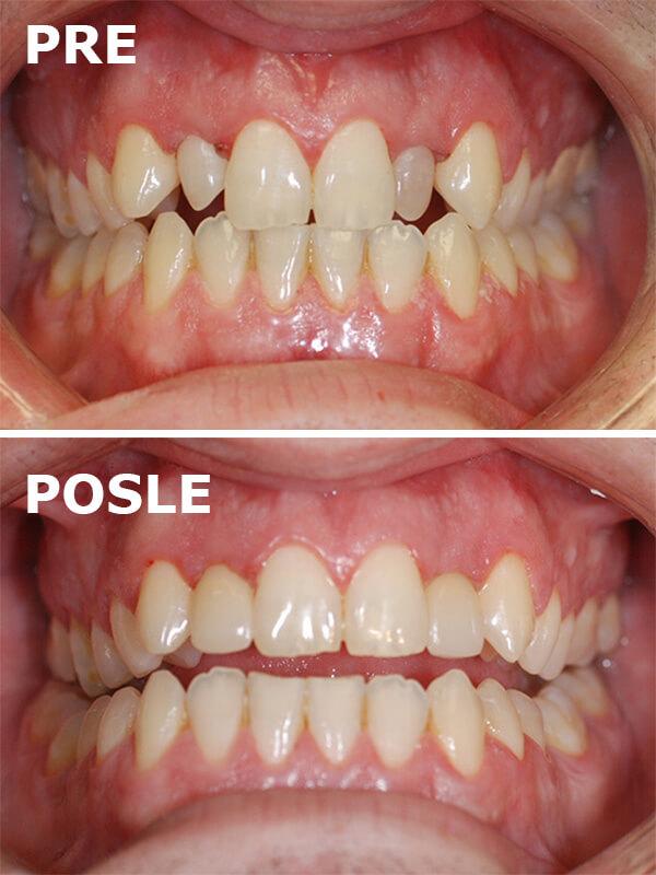 fasete bez brusenja pre i posle dental oral centar