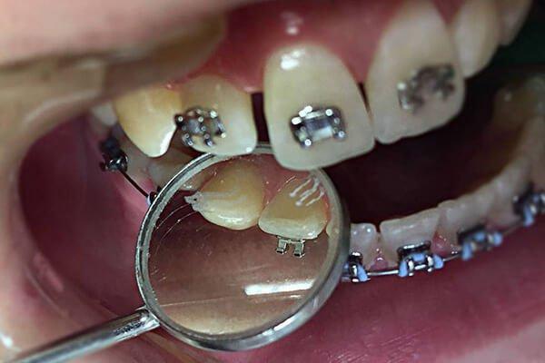 vilica sa postavljenjim fiksnim protezama Dental Oral Centar