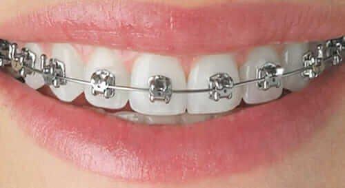 fiksne proteze sa metalnim bravicama Dental Oral Centar Beograd