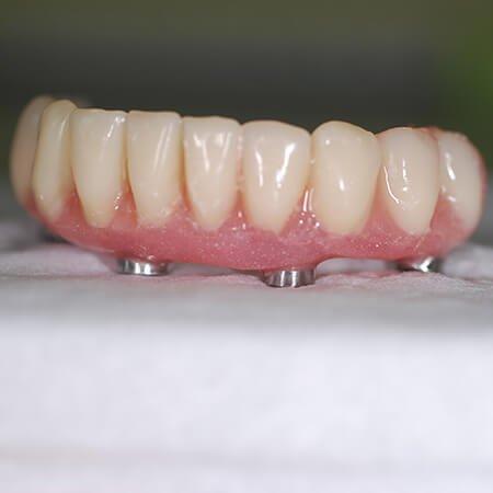 fiksni most na implantima