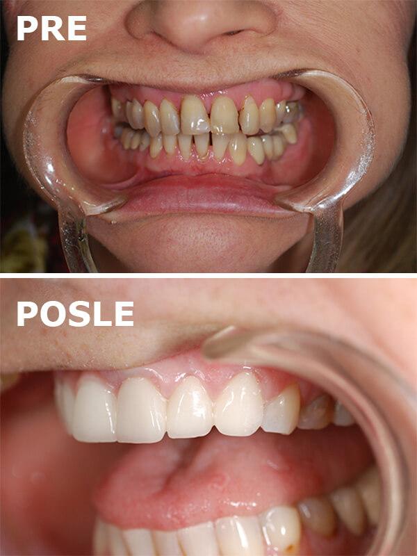 implanti pre i posle dental oral centar