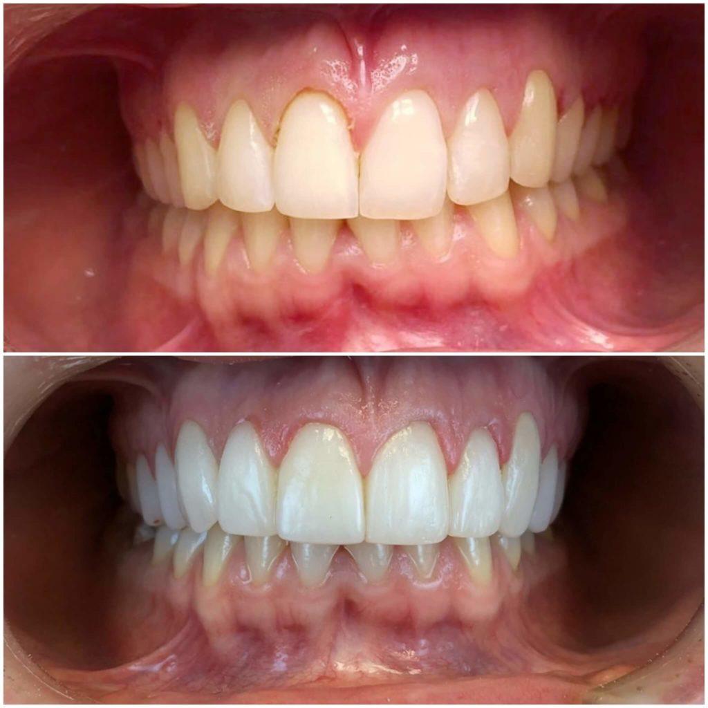 keramicke fasete bez brusenja zuba