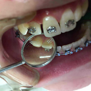 proteze sa metalnim bravicama stomatološka ordinacija Dental Oral Centar