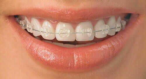 safirne fiksne proteze Dental Oral Centar Beograd