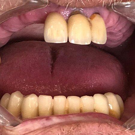 pacijent pre ugrađivanja implanti all on 4