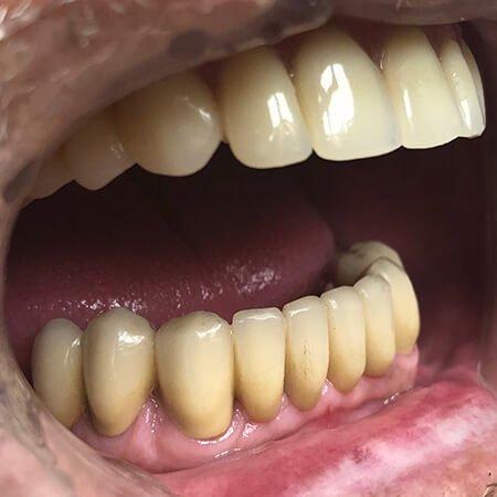 izgled vilice sa ugrađenim all on 4 implantima