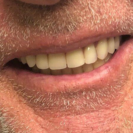 pacijent nakon ugradnje all on 4 implanata